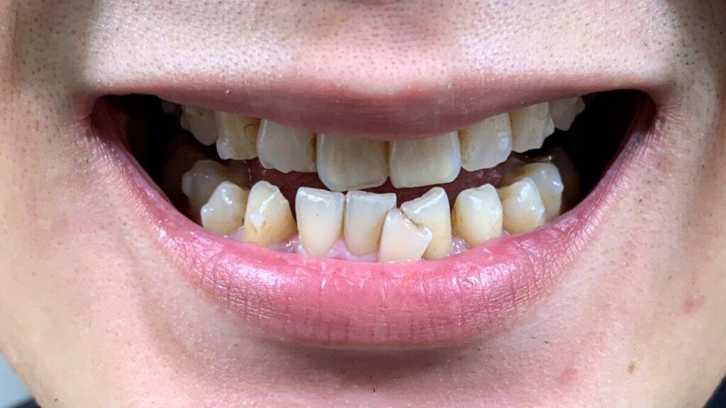 インビザラインですきっ歯になった