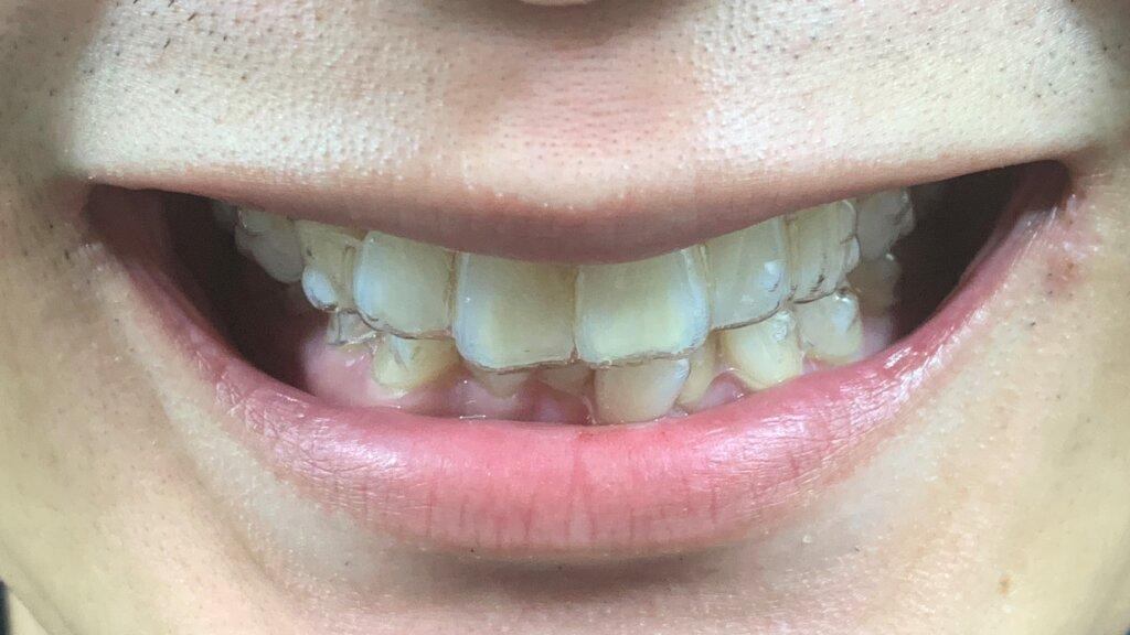 インビザライン 24週目のアライナー 前歯が疼く